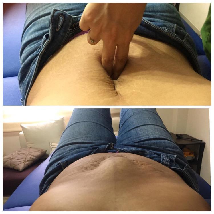 diástasis-abdominal-LPF