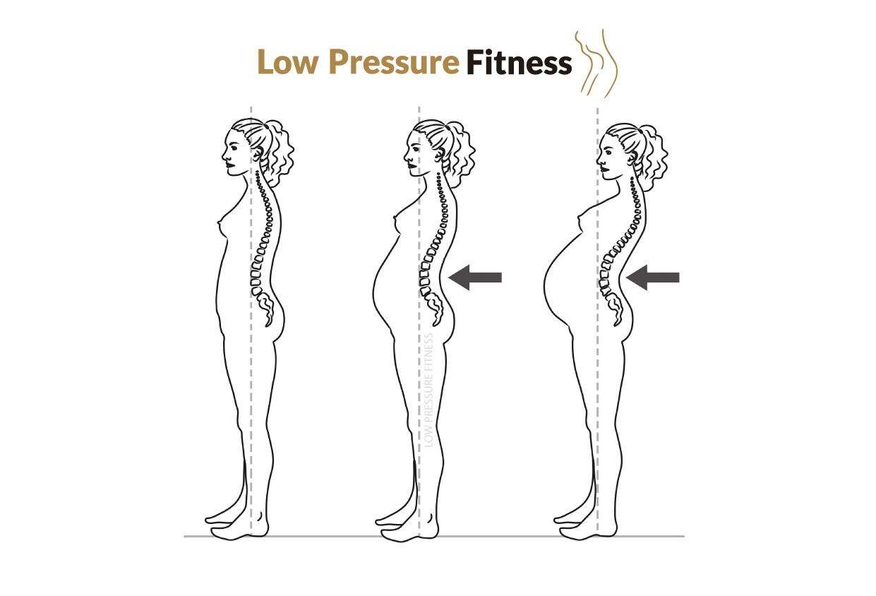 dolor-espalda-embarazo